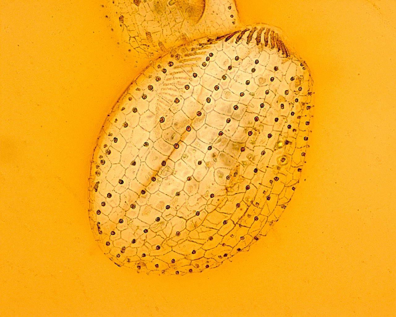 Euplotes sp. (Impregnazione argentica)
